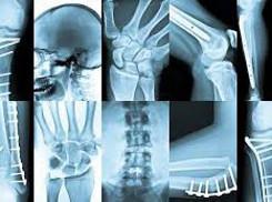 Radiologia Digitale